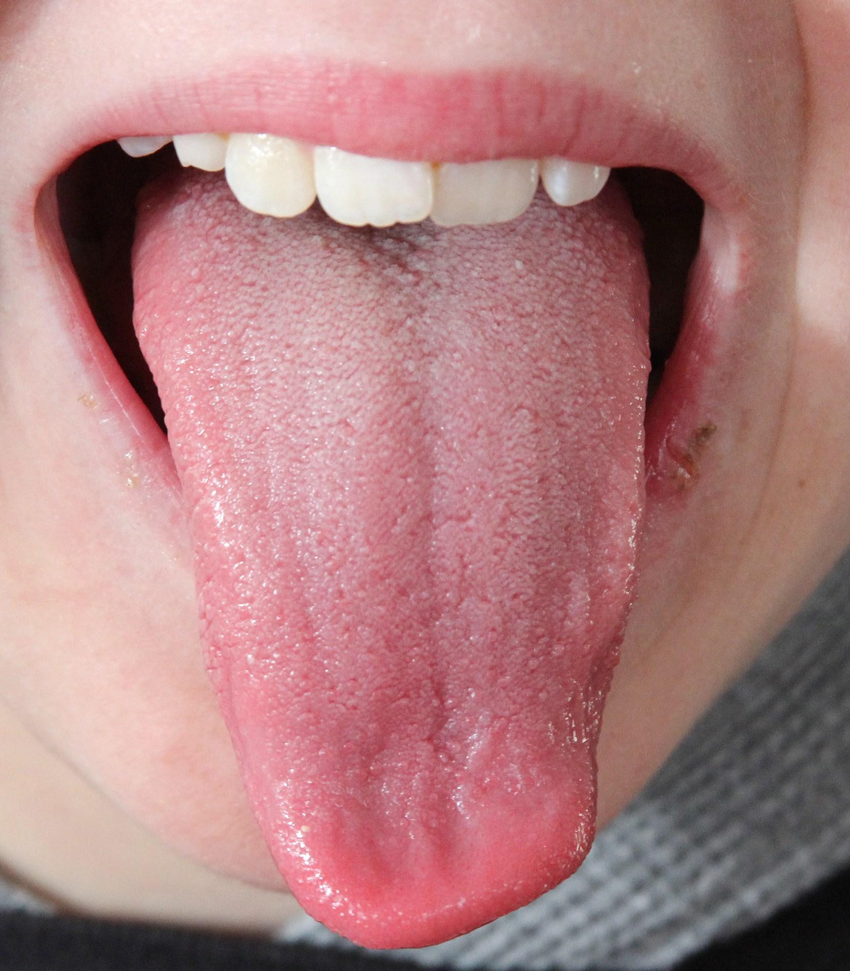 tongue-2a